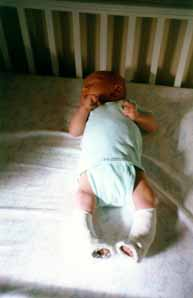 Clubfoot Photos