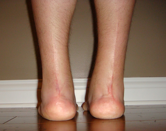 Clubbed Foot 19